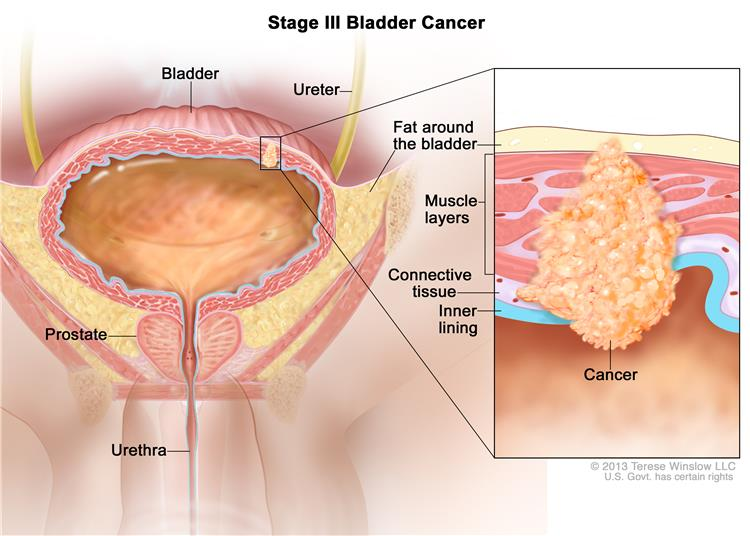 Stage III bladder cancer; drawing shows the bladder, ureter, prostate, and urethra. Inset shows cancer in the inner lining of the bladder, the layer of connective tissue, the muscle layers, and the layer of fat around the bladder.